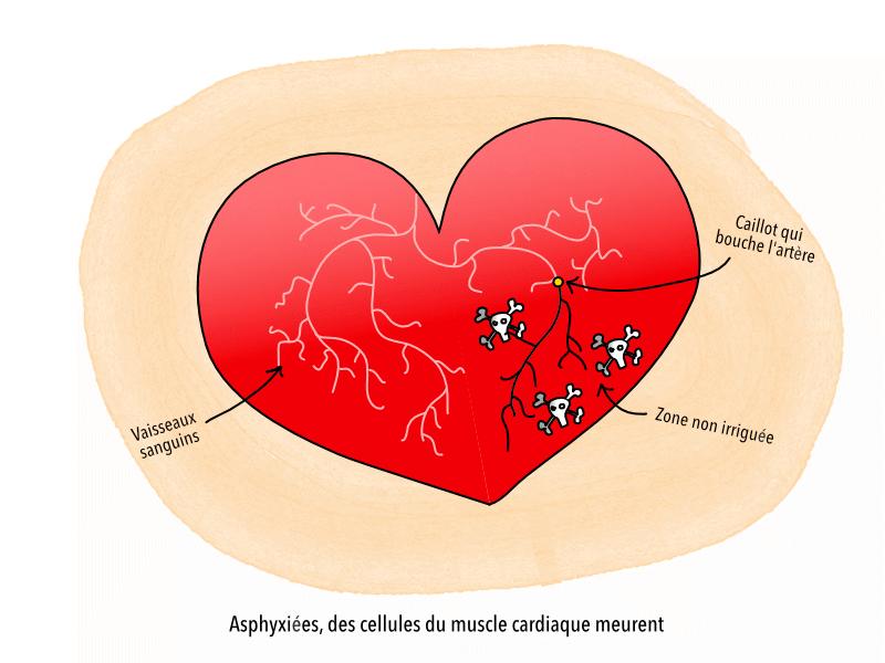 crise_cardiaque